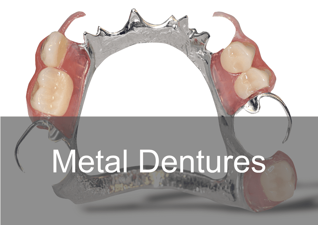 Private Metal Chrome Dentures at Swissedent Denture Clinic in London UK