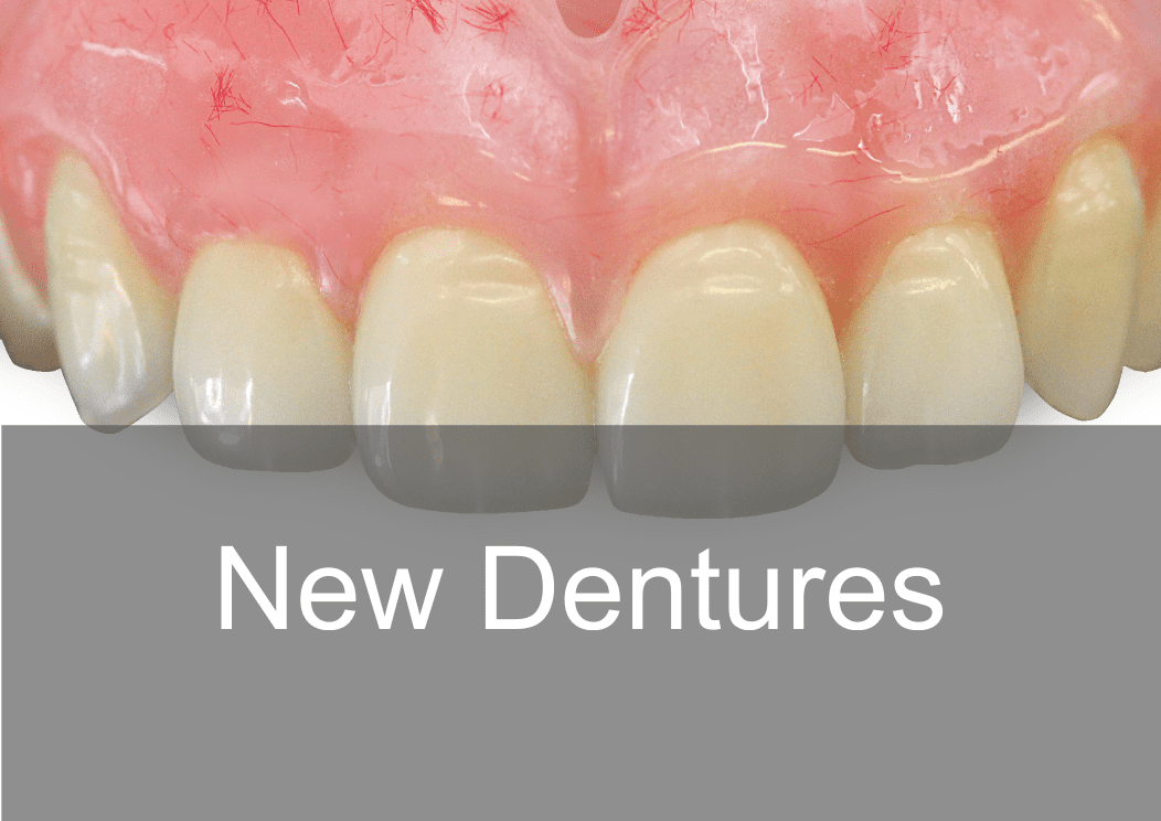New cosmetic natural looking dentures - Swissedent Denture Clinic